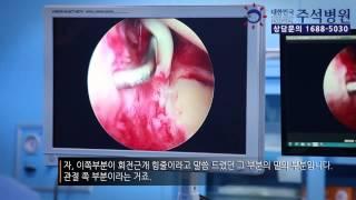 [수원어깨통증 정형외과] 충돌증후근 관절내시경수술 유주…