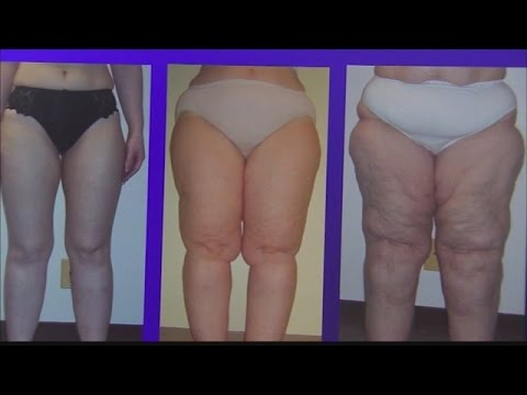 Lipedema: Women gaining weight at no fault of their own