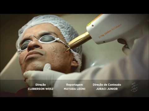 Acne, espinhas ou cravos? Entenda essa doença com o dermatologista  Paulo José Filho