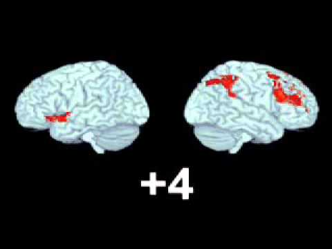 fMRI of Brain During Musical Transition