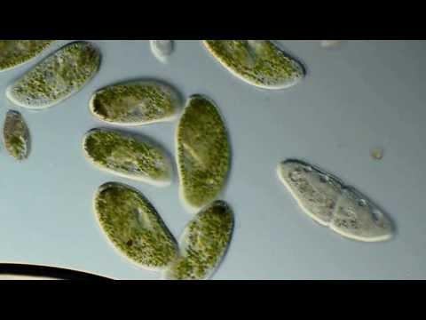 Paramecium bursaria, P. caudatum, Oxytricia. 400-1000X ...