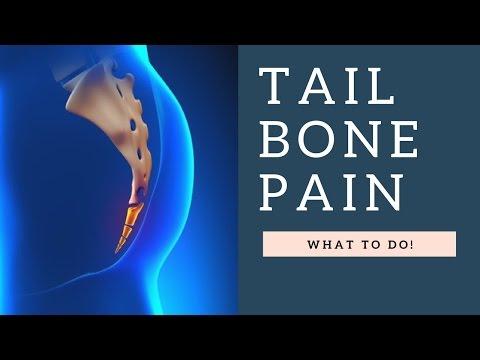 Addressing Tail Bone Pain / Coccydynia / Coccyx Pain