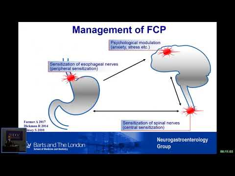 Rome IV: New diagnostic criteria for functional esophageal disorders by Qasim Aziz