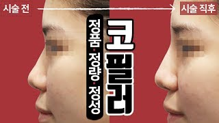 코필러 효과 시술영상 청량리 톡스앤필