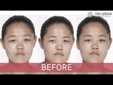 Пластика в Южной Корее: Клиника пластической хирургии Гранд(Let Me In 2 - Udval)