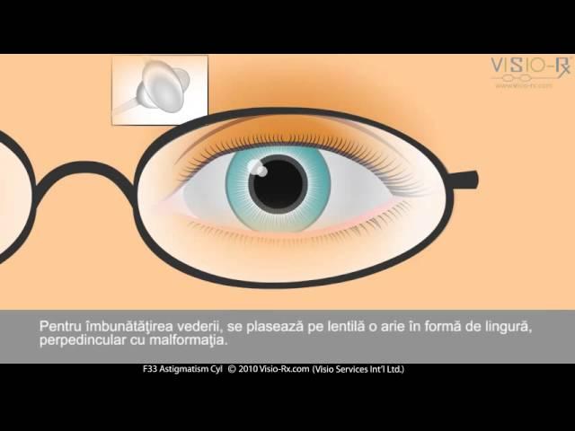 amețeli scăderea vederii
