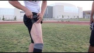 Broken Femur Doesn't Stop Daniel Conklin: Video By NMPreps.com