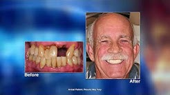 Laser Dentistry with Fort Myers, FL dentist D. Scott Trettenero, DDS
