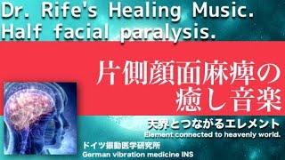 🔴ドイツ振動医学による片側顔面麻痺編|Half facial paralysis by German Oscillatory Medicine. ベル麻痺 検索動画 14