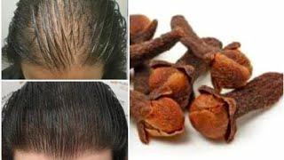 Cómo acelerar el crecimiento del cabello en 1 mes. Remedio natural.