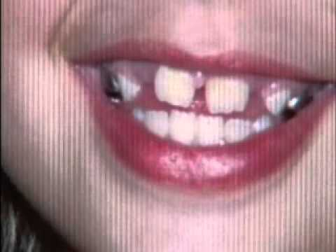 Part 1 Wichita, KS Small Smiles Dental Abuse by Michael Schwanke