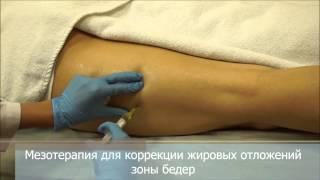 Смотреть видео Мезотерапия тела для похудения