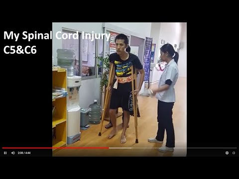 My Incomplete Spinal Cord Injury Recovery- C5,C6 ...