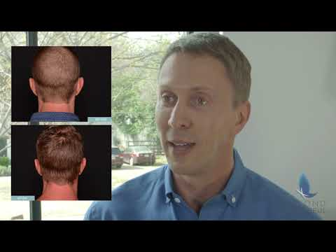 Beyond Beautiful: NeoGraft® Hair Transplant
