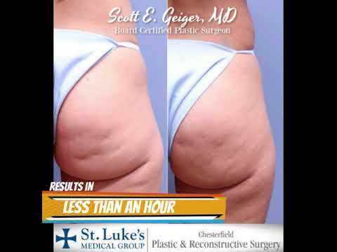 Dr Dimple Stopper Buttock Cellulite Release