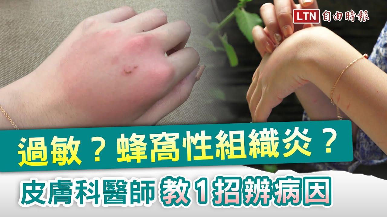 癢癢片》手腫得像哆啦A夢?醫師:一招辨別是不是蜂窩性組織炎