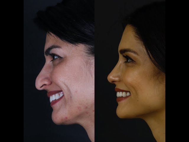 Droopy tip nose job   planning to long term results