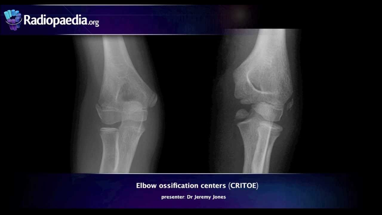 Elbow ossification centers (CRITOE) - radiology video tutorial - YouTube