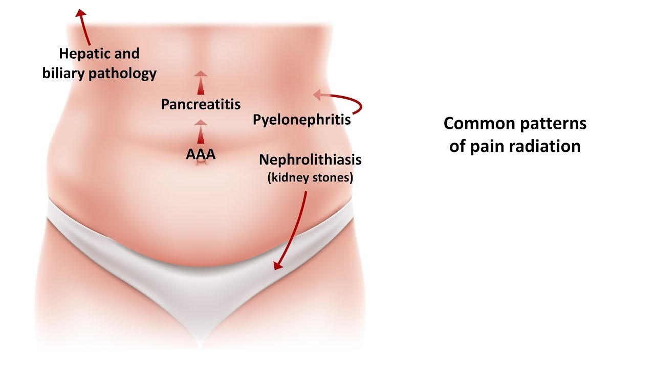 An Approach To Acute Abdominal Pain Youtube