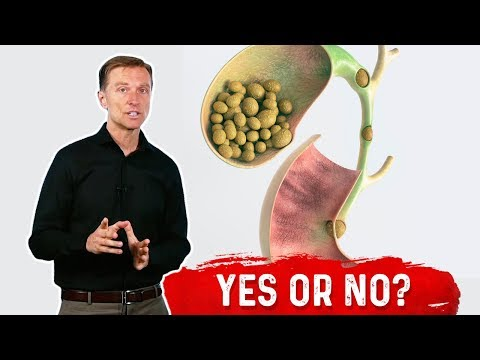 should-you-remove-your-gallbladder-because-of-a-stone?