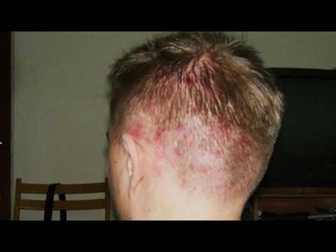 На голове в волосах прыщ болит