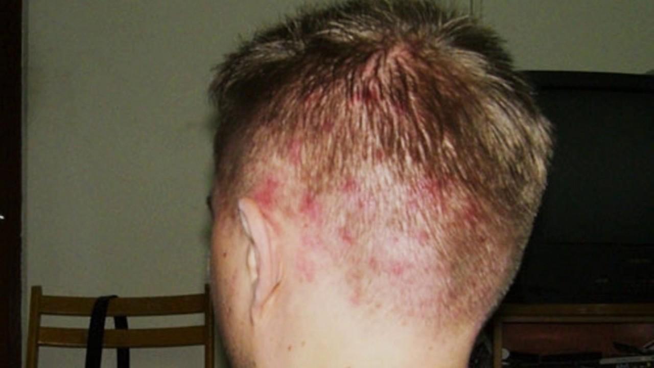 Почему в волосах на голове появляются прыщи