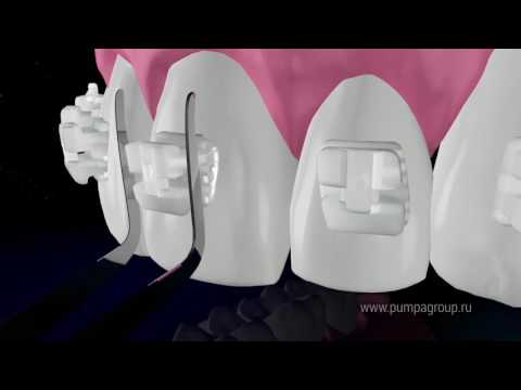 Керамические брекеты: видео о керамических брекетах QuicKlear (Квик Клеа) компании FORESTADENT