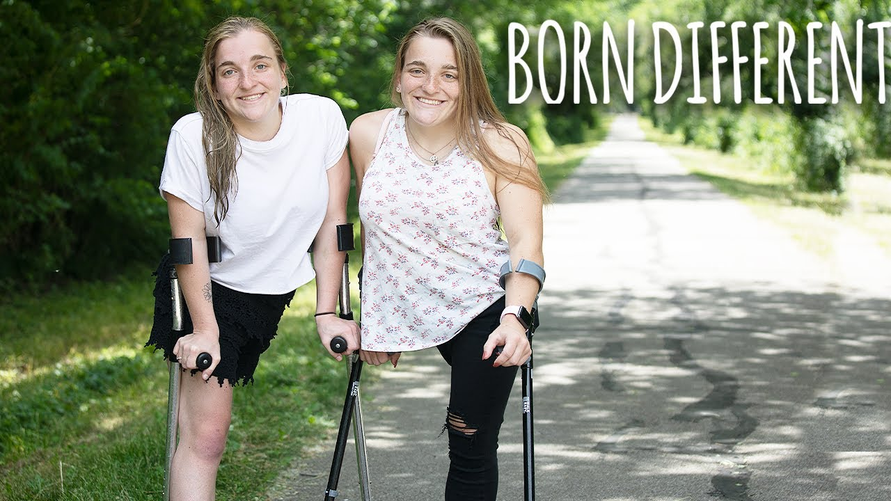 The Twins Who Used To Share One Body | BORN DIFFERENT
