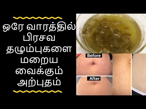 Pregnancy stretch marks removal in tamil I Get Rid Of Stretch Marks in tamil  I பிரசவ தழும்பு மறைய