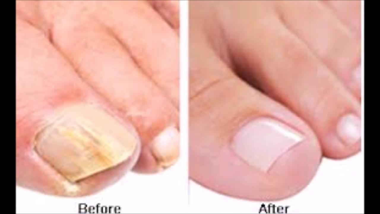 rid of toenail fungus