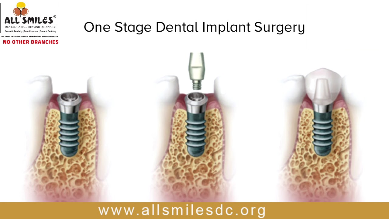 Two Stage Implant Surgery In Bangalore Best Dental Implant Clinic In India Youtube