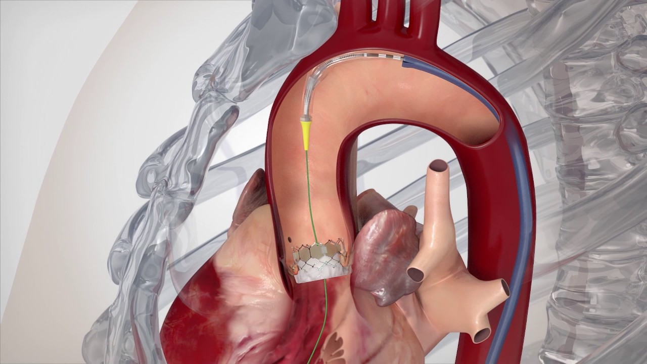 Value of Medical Technology - Transcatheter Aortic Valve Implantation (TAVI)  - YouTube