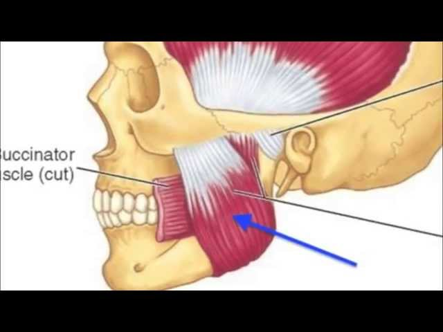 How to treat bruxism / tooth grinding with anti-wrinkle injections