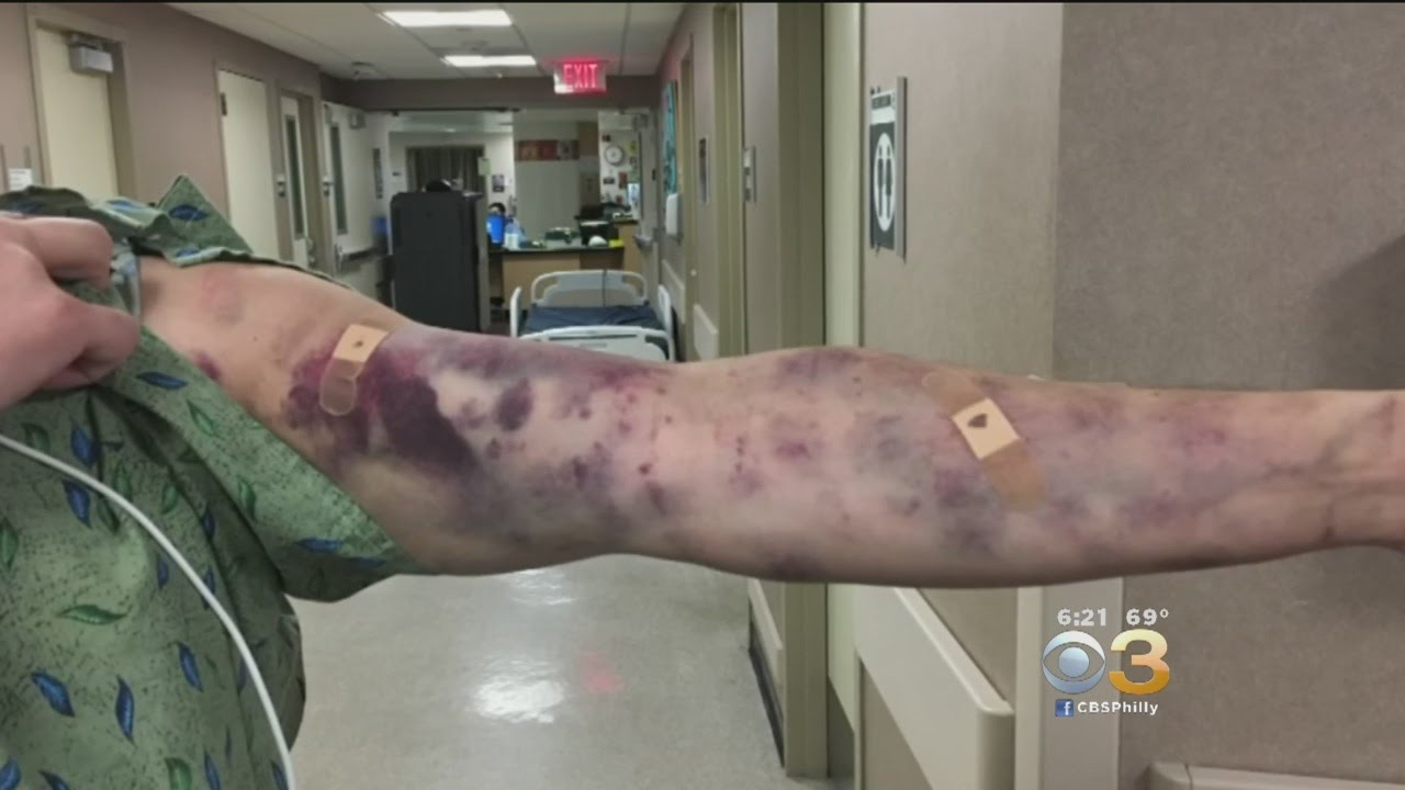 Mysterious 'Bug Bite' Leaves Man's Arm Covered In Bruises