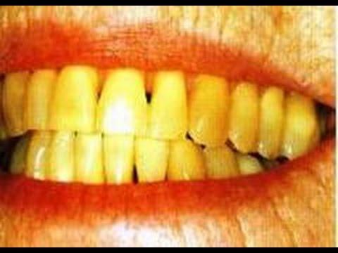 5 Cara Alami Putihkan Gigi Yang Kuning