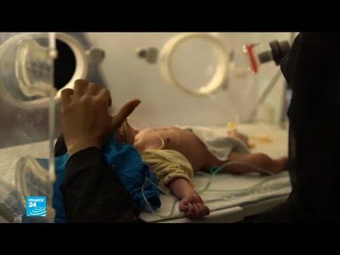 أكثر من 8 ملايين يمني على حافة المجاعة!  - 14:56-2018 / 10 / 15
