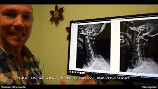 Degenerative Disc Disease - Sacramento Chiropractor