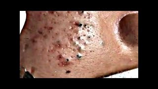 blackhead - blackhead removal ear - acne treatment 2019 HD