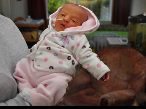 Maya had trisomy 5 syndrome. She lived beautiful 24 days.