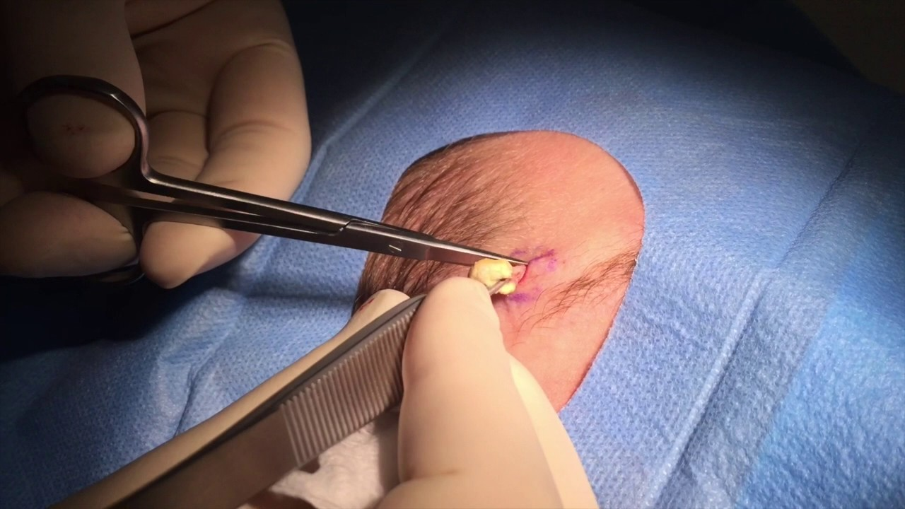Cyst removal doctors, minimal scarring | Cosmedics Skin Clinics