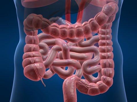 Полипэктомия сигмовидной кишки
