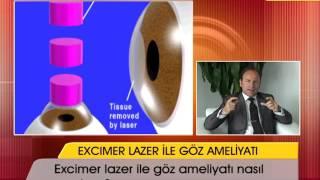 Excimer lazer ile göz ameliyatı nasıl yapılıyor?