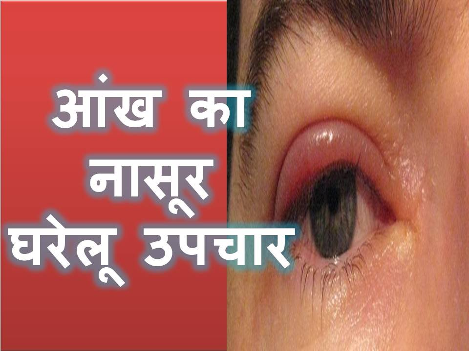 Eyes Vision Eye Problems Symptoms Hindi