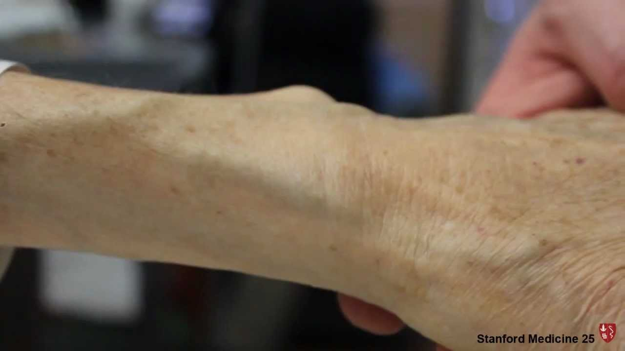 Measuring Central Venous Pressure with the Arm | Stanford