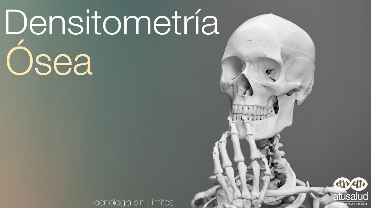 guia practica clinica sobre osteoporosis prevencion fracturas por fragilidad