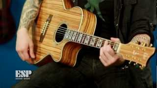 ESP Guitars: Guitar of the Week - LTD Xtone Exotic Wood Acoustics