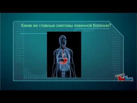Язва желудка – причины, признаки, симптомы и как лечить