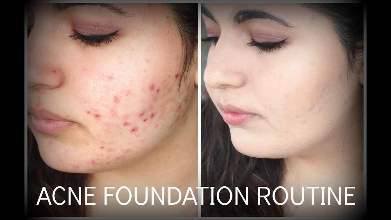 how to stop eally bad acne scarring
