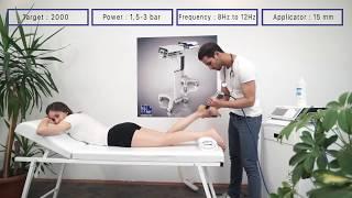 MODUS ESWT Touch - Plantar Fasciitis Treatment