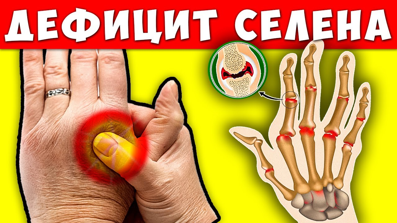 5 Тревожных Сигналов Дефицита Селена в организме! Чем Восстановить недостаток Селена